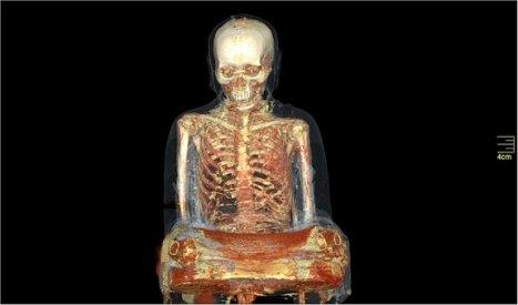 Otra imagen de la momia del monje obtenida mediante resonancia magnética